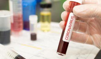 Koronavirüsün Neden Hızlı Bir Şekilde Yayıldığı Ortaya Çıktı